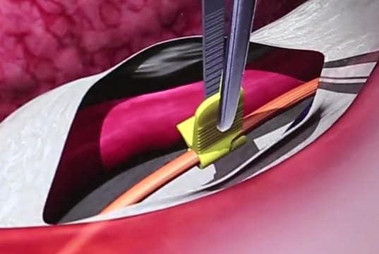 Συνεχής νευροπαρακολούθηση κατά τη διάρκεια της επέμβασης